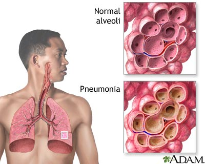 Nursing Care Plan for Pneumonia