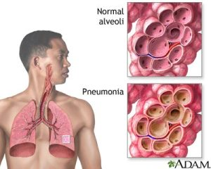 serangan Pneumonia